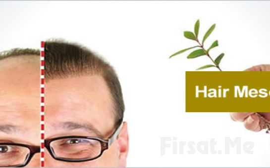 Saç Dökülmelerini Engelleyin! Estehouse Güzellik Merkezi'nde Saç Mezoterapisi Fırsatı!