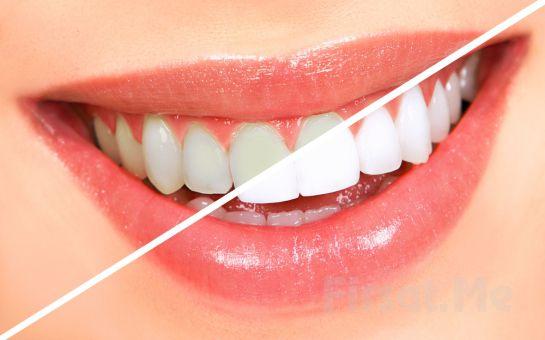 Korkmadan Gülümseyin Pendik Baydent Diş Sağlığı Kliniği'nden 2 Seans Diş Beyazlatma Fırsatı