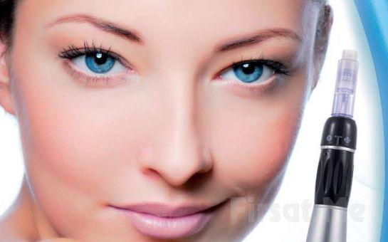 Ataşehir White Plus Güzellik Merkezi'nden Dermapen Uygulaması veya Kimyasal Peeling ile Kırışıklık ve Leke Tedavisi!
