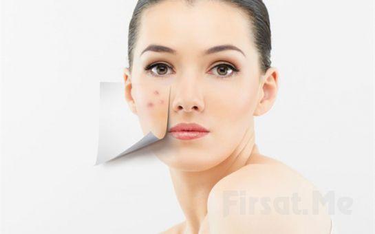 Pendik LivaDerm Güzellik Merkezi'nden, Bay ve Bayanlar İçin Akne Tedavisi 1 Seans, Temizleme, Cyro Uygulaması, Peeling, Serum ve Roller Uygulaması, Maske, Nemlendirme, Masaj