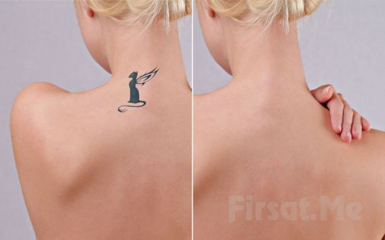 İstenmeyen Dövmelerden Kurtulmak Artık Mümkün! Da Vinci Clinic Nişantaşı'nda 4*4 Ebatında Dövme Silme İşlemi!