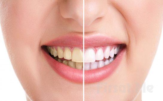 Bağdat Caddesi Fatma Tuğba Aydın Klinik'ten Bitkisel Diş Beyazlatma İşlemi!