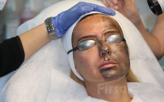 Aknesiz, Lekesiz, Daha Genç ve Canlı Bir cilt İçin Da Vinci Clinic Nişantaşı'nda Lazerle Karbon Peeling Uygulaması