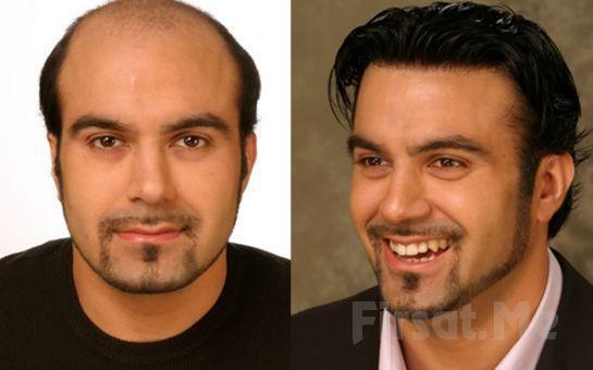 Büyükçekmece Soner Güzellik Merkezi'nde Protez Saç Uygulaması!