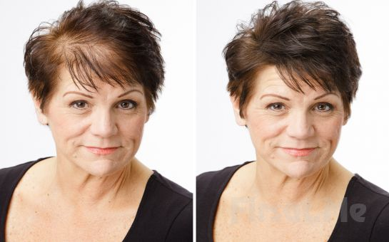 Beyoğlu Point Saç Tasarım'da Saç Mezoterapisi veya Saç Similasyonu