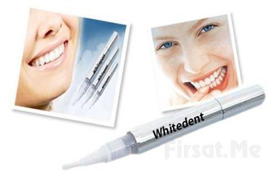 Bembeyaz Gülüşler İçin Yeni Diş Beyazlatma Kalemi WhiteDent Fırsatı!