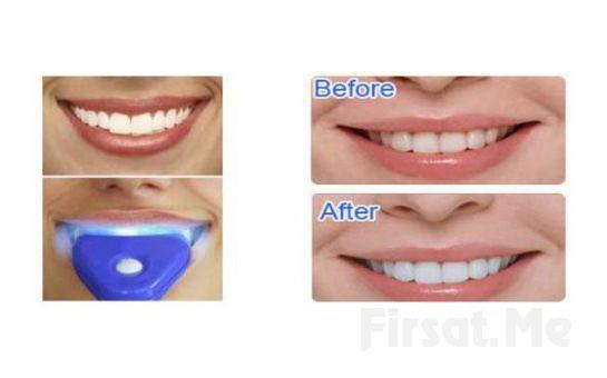 Dişleriniz Işıl Işıl ve Bembeyaz Olsun Diş Beyazlatma ve Parlatma Seti White Light