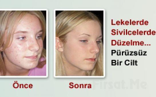 Saf Ozon Yağının Etkisi İle %100 Doğal Güzellik! Ottomans Saf Ozon Yağı!