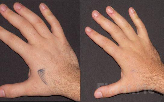 İstenmeyen Dövmelerinizden Kurtulmak Mümkün Alisse Estetik'ten 3 Seans Kimyasal Peeling Uygulaması