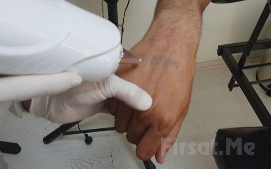 İstenmeyen Dövmelerden Kurtulmak Artık Mümkün Beşiktaş Medical Clinic İstanbul'da 6*6 Ebatında Dövme Silme İşlemi