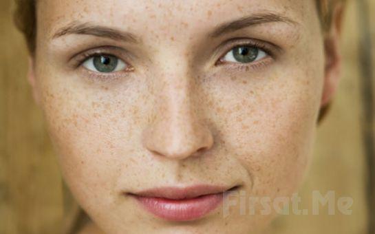 Ataşehir White Plus Güzellik Merkezi'nden Dermapen Uygulaması veya Kimyasal Peeling ile Kırışıklık ve Leke Tedavisi