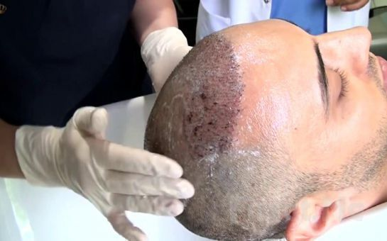 Ataşehir Esteday Clinic'te Saç Dökülmesine Karşı Güvenilir ve Profesyonel 2 Adet PRP Seansı!