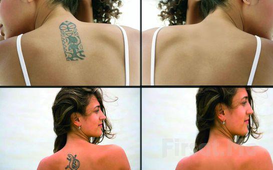 İstenmeyen Dövmelerden Kurtulmak Artık Mümkün! Çankaya Royal Wo&Man Tattoo'da Dövme Silme İşlemi!