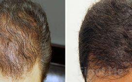Bağdat Caddesi SUNA TUNCA Güzellik'te Saç Simülasyonu Uygulaması